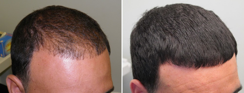 v71mm53dpt9rxepp.D.0.Hair-Loss-Treatment.jpg
